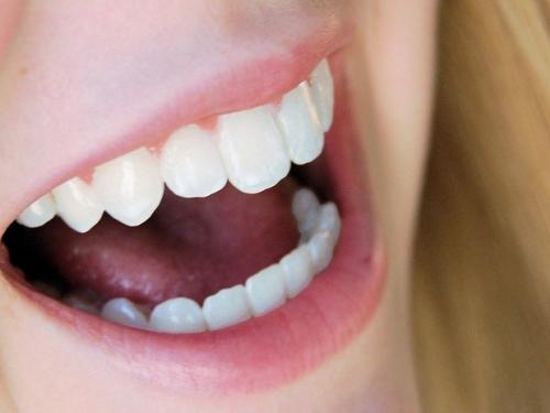 Por que os dentes amarelam e como evitar isso